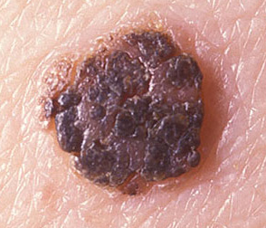 Clinical Image of Mole