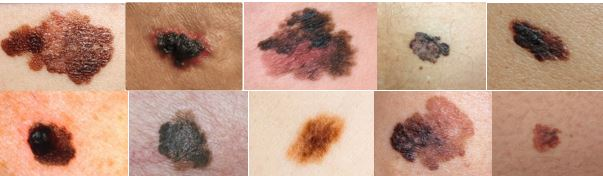 Melanoma appears in many shapes, colors, and patterns.