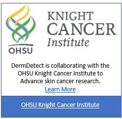 DermDetect has joined with the Oregon Health & Science University (OHSU) Knight Cancer Institute to advance skin cancer research as part of research collaboration. With your OHSU consent, you can donate your Advanced Skin Cancer Screening (ASCS) data to OHSU's research efforts. The collaboration's goal is to collect data from over 100,000 consenting recipients of ASCSs in a groundbreaking effort focused on early detection of skin cancer to improve survival rates.